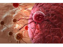 Webinar: Themenabend Krebs  Teil 2