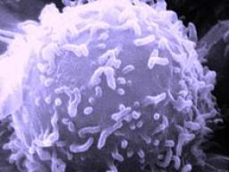 Webinar: Astromedizin 1.2: Blut und Lymphsystem; Hodgkin und Non-Hodgkin-Lymphom