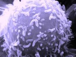 Webinar: Astromedizin 1.3: Blut und Lymphsystem; Plasmozytom und AIDS