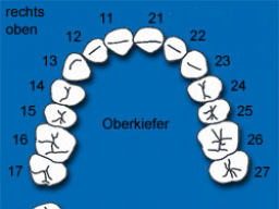 Webinar: Die Seelenbotschaft Deiner Zähne
