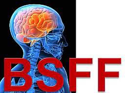 Webinar: So geht Selbstcoaching heute: BSFF-Technik lernen