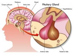 Webinar: Radiästhesie Hormone Glücklich Gesund Körper Geist